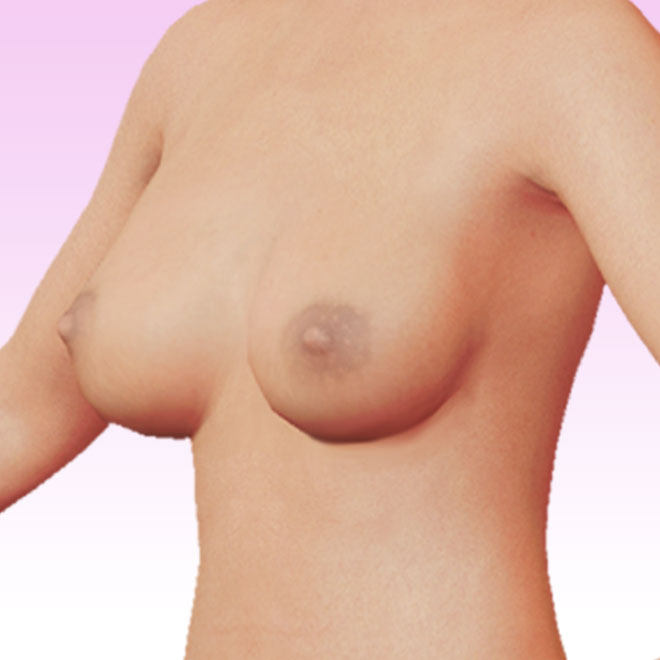 breast left oblique