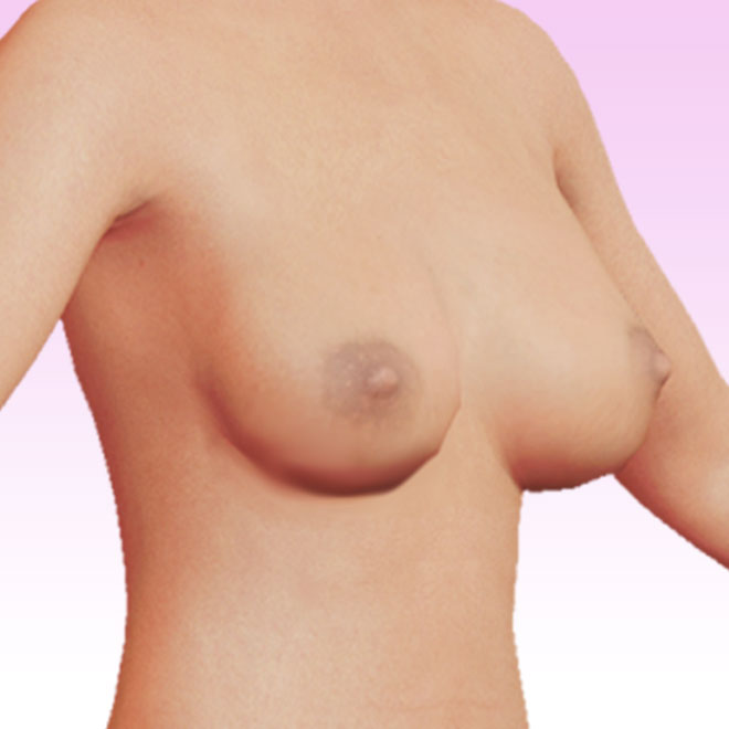 breast right oblique
