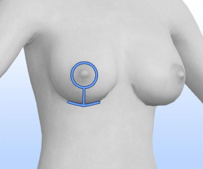 scars breast lift - II