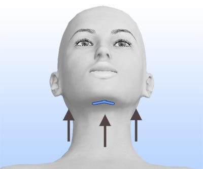 scars face lift and neck lift - II