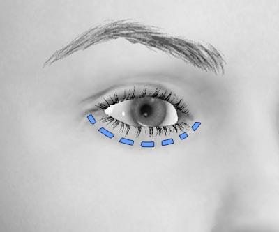 scars lower eye bags blepharoplasty - III