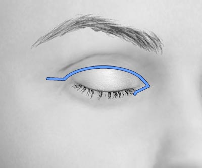scars upper asian blepharoplasty 2